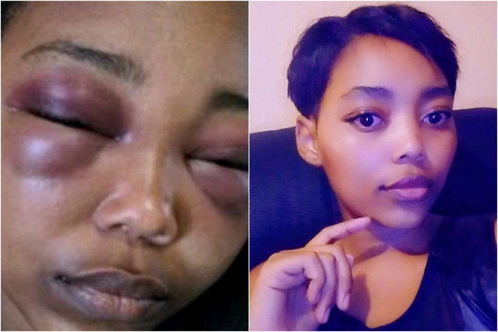 beautiful woman horribly beaten by boyfriend reveals how police treated her instead of protecting her